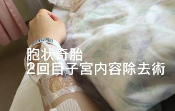 胞状奇胎2回目子宮内容除去術